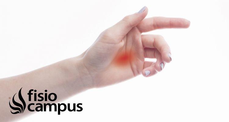dedo en gatillo cirugia pdf