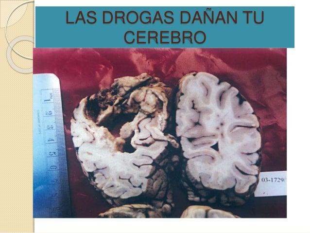 consecuencias del consumo de drogas en bebes pdf