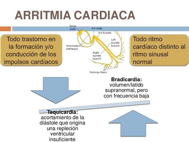 arritmias clinica las condes pdf