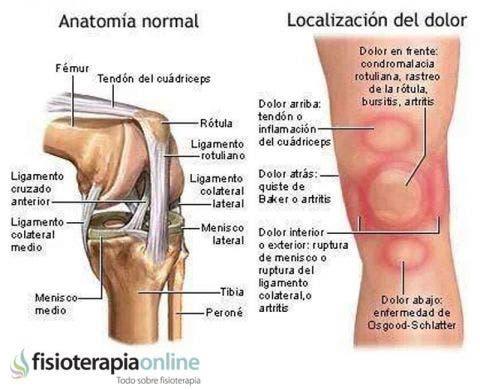 artrosis de rodilla que es pdf