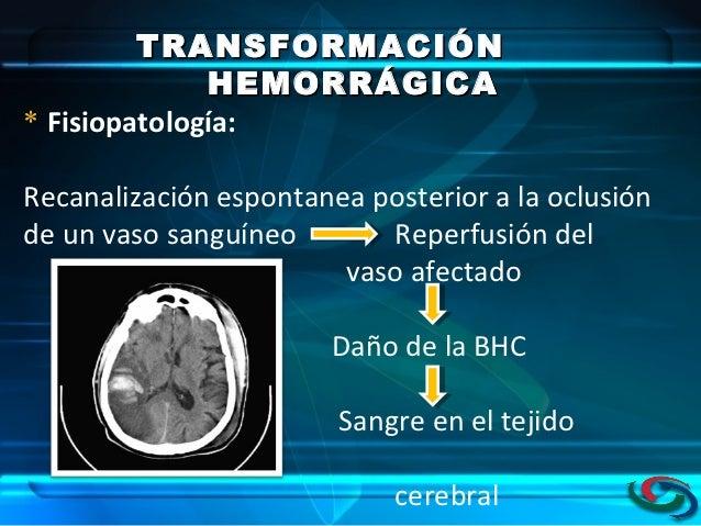 con transformación hemorrágica de origen cardioembólico pdf